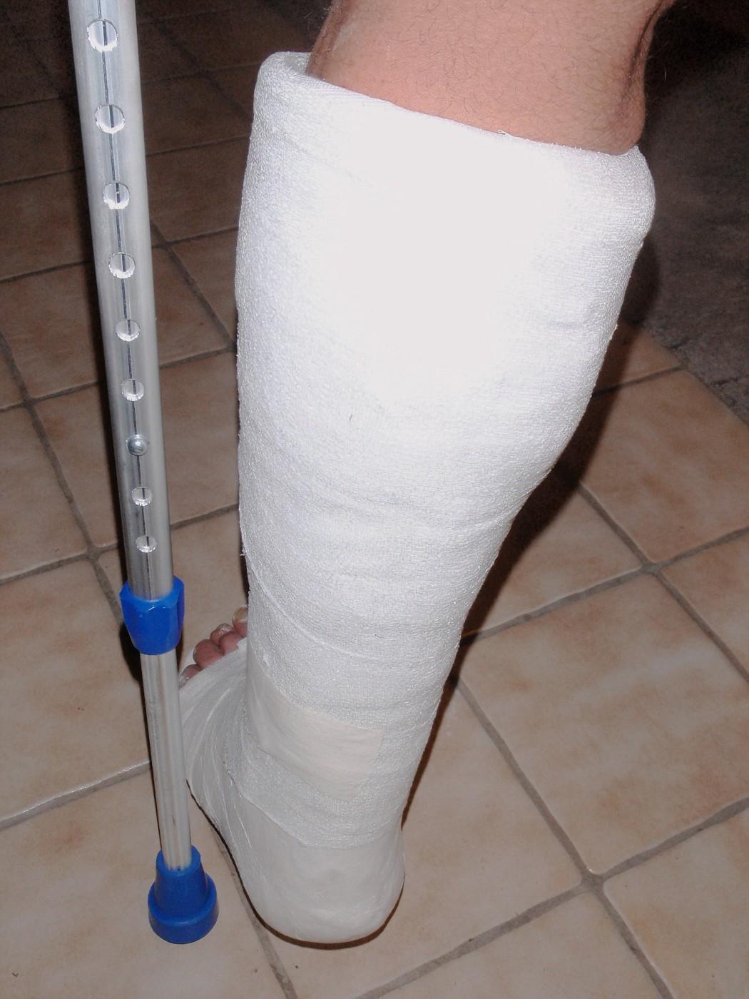 Leg plaster